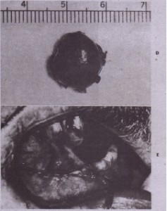 FIG. 22-2-cont'd D, Cyst with buccal bone still attached, E, Mucosal closure is demonstrated.