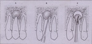 FIG. 22·4 Apical cystectomy performed at time of tooth removal. A to C, Removal with curette via tooth. socket is visualized. A apical cystectomy must be performed with care because of proximity of apices of teetn to other structures, such a5 maxillary sinus and inferior alveolar canal.