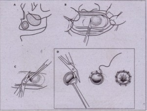 FIG. 22-5 Marsupialization technique. A, Cyst within maxilla. B, Incision through oral mucosa and cystic wall into center of cyst. C, Scissors used to complete excision of window of mucosa and cystic wall. D, Oral mucosa and mucosa of cystic wall sutured together around periphery of opening.