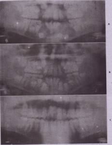 FIG. 22-6 Marsupialization of multiple dentigerous cysts. A, Radiographic appearance before marsupialization. Marsupialization was carried out along crest of alveolar process on both sides. 8, One year later, the uprighting and sruptlon.of teeth are demonstrated. C, Three years later. No orthodontic assistance was. required. (From Ellis E, Fonseca RJ: Therapy of cysts and odontogenic tumors. In Thawley SE et al, editors: Comprehensive management of head and neck tumors, ed 2, Philadelphia, 1999, WB Saunders; courtesy qr. TImothy Pickens, Ypsilanti, MI.)