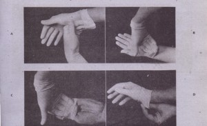 FIG. 5-8 Technique of sterile self-gloving. A, Fingers of right hand are placed into right glove; fingers of left hand hold interior edge of cuff. B, Right hand slowly pushes into glove, while left hand pulis glove on hand. Cuff of right glove is left unturned at this stage. C, Right hand is placed inside cuff of left glove, and left hand is then placed into opening of left glove. Care is taken not to allow right hand to touch interior of left glove. Right hand remains only on exterior surface of left glove. 0, Left hand slowly pushes into left glove, while right hand helps to push glove on opposue hand. After fingers of left hand are completely in place, right hand turns- cuff down onto forearm, taking care not to let right glove touch any nonsterile surface. E, Fingers of left fully gloved hand are inserted into 'cuff of right glove and are used to turn that cuff down, which completes self-gloving procedure