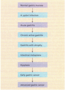 Flow diagram showing the development of gastric cancer associated with H. pylori infection.
