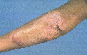 lupus vulgaris with active granuloma formation at the margins.