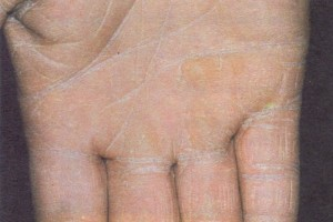 Trichophyton rubrum infection of the right palm.