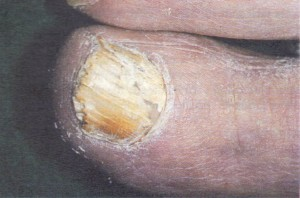 Dystrophy of the toe-nail associatedwith dermatophyte infection (tinea unguium).