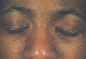 Micropapular sarcoidosis affecting the eyelids