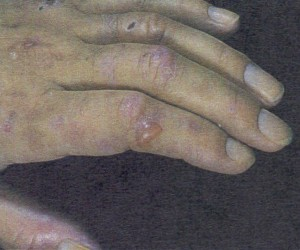 Scarring and blister formation seen with porphyria cutanea tarda