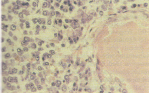 Multiple myeloma showing replacement