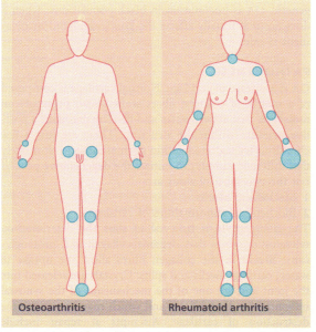 The pattern of joint involvement in osteoarthritis compared