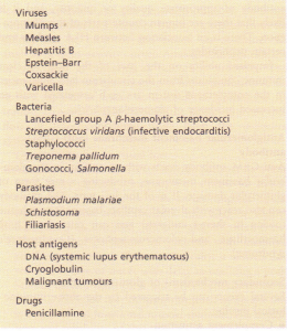 Some causes of immune complex-mediated glomerulonephritis.
