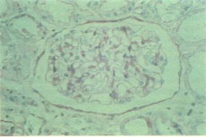 A normal glomerulus.