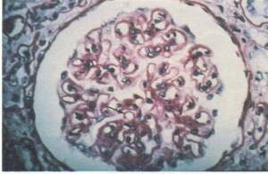 Membranous glomerulonephritis showing thickened basement membrane (arrow).
