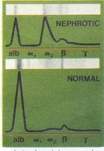 Serum electrophoresis in a normal person