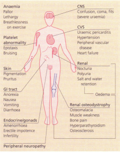 Symptoms and signs of chronic renal failure.