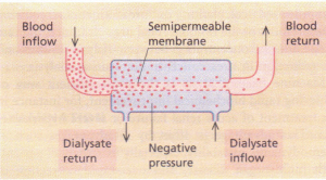 Changes across a semi-permeable dialysis membrane.