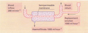 Principles of haemofiltration.