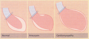 Diagrams of left ventricular angiograms.