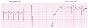 pc-cardloverslon of a supraventricular tachycardia to sinus rhythm.