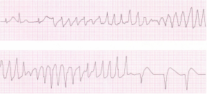 An ECG demonstrating a supraventricular