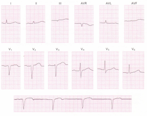 A 12-lead ECG from an 11-year-old child