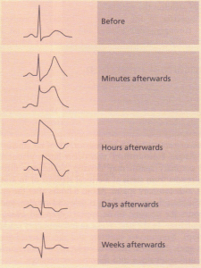 Electrocardiographic evolution of myocardial infarction.