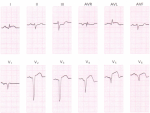 A 12-lead ECG showing an acute anterolateral myocardial infarction.