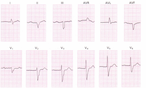 A 12-lead ECG demonstrating a prolonged PR