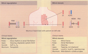 Auscultatory features associated with mitral