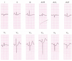 A 12-lead ECG of a patient