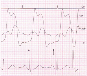 Simultaneous recordings of the ECG,