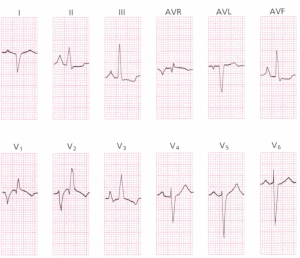 A 12-lead ECG demonstrating