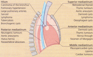 Subdivisions of the mediastinum and mass lesions.