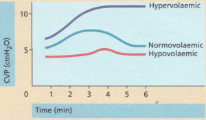 The effects of rapid administration of a 'fluid challenge'