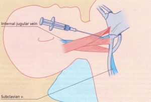 Cannulation of the right