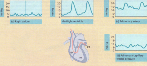 Passage of a Swan-Ganz catheter through the chambers of the heart into the 'wedge' position. (
