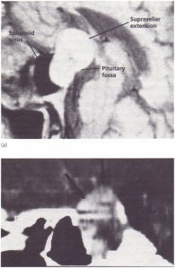 (a) MRI of pituitary fossa showing tumour with suprasellar extension.