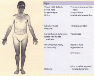 The signs of acromegaly. Bold type indicates signs of greater discriminant value.