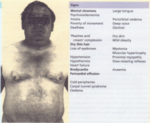 The signs of hypothyroidism. The bold type indicates signs of greater discriminant value.