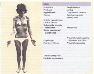 The signs of hyperthyroidism.