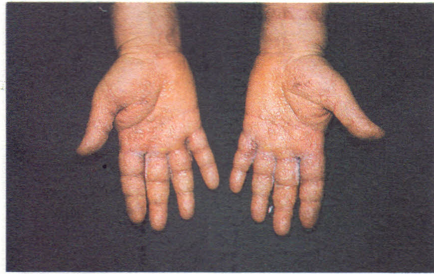 topical steroids for stasis dermatitis